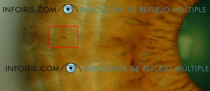 Caso 3 Iris Derecho